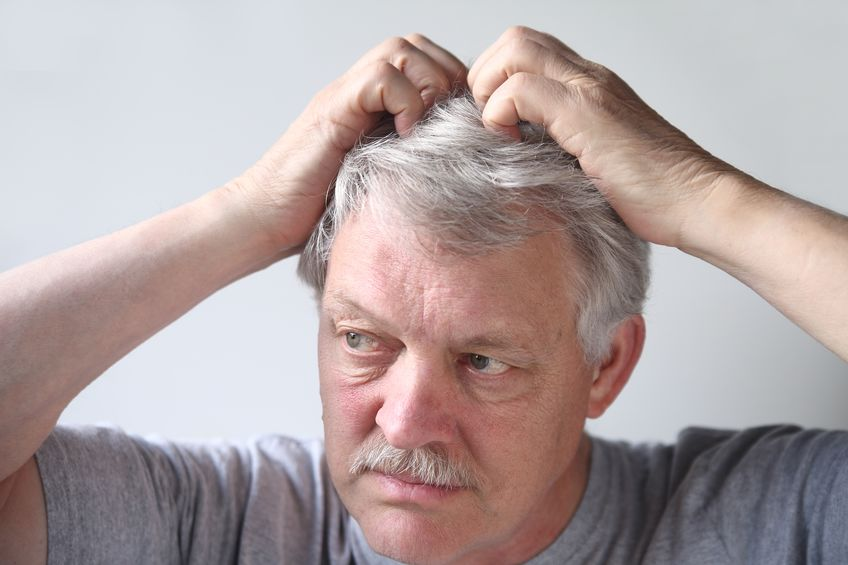 What Causes Dandruff? Treatment For Dry Scalp And Psoriasis